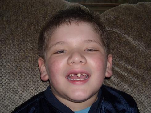 alexs-tooth-003